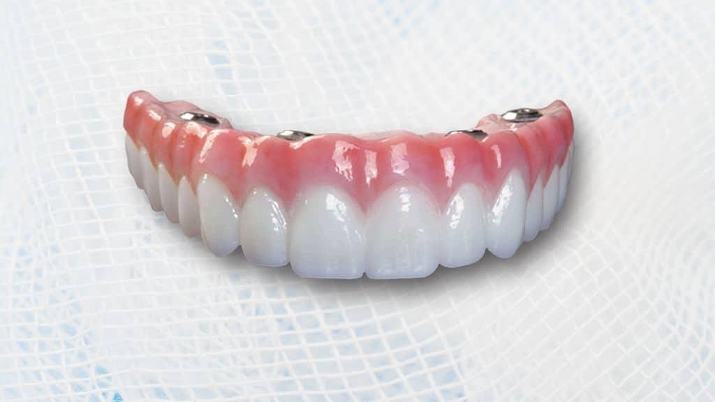 denture implant danforth toronto