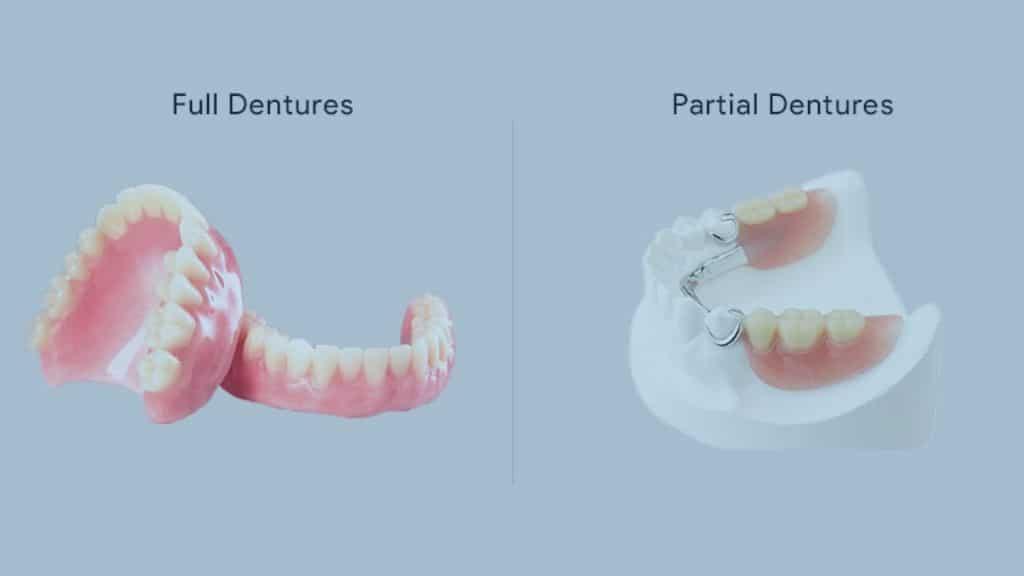 toronto full partial dentures